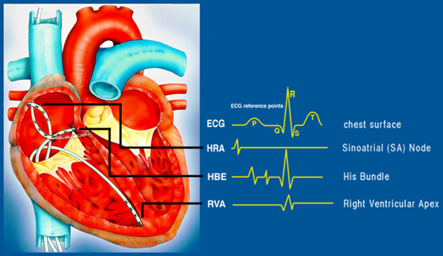 heart assignment